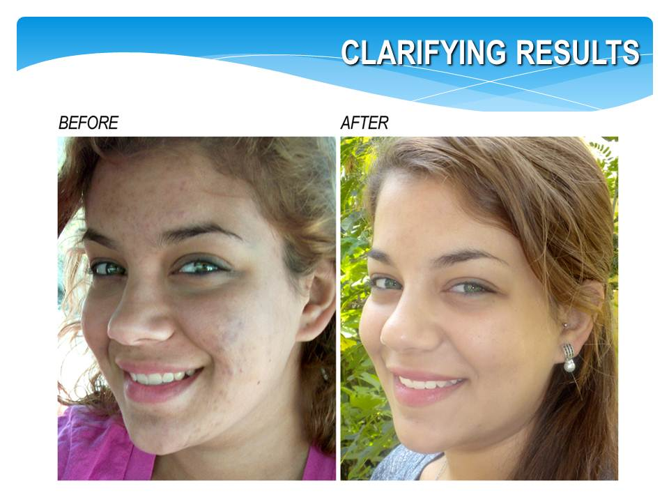 BlemishLess 3-Step Rapid Clarifying Acne Kit